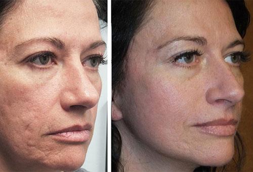 Результат лазерной шлифовки лица