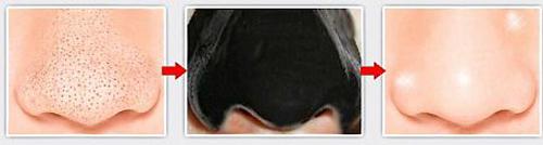 Маска для лица от черных точек с углем