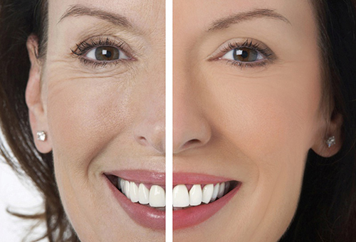 Эффект от лазерного пилинга лица