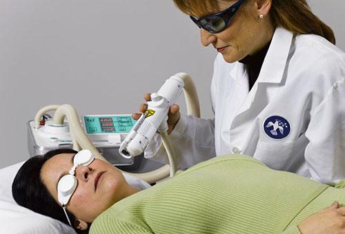 Процедура лазерного пилинга лица