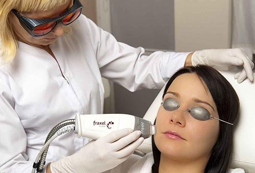 Лазерный пилинг кожи лица
