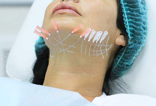Армирование кожи нитями