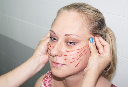 Разметка для вживления нитей под кожу