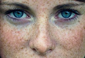 Пигментация кожи лица