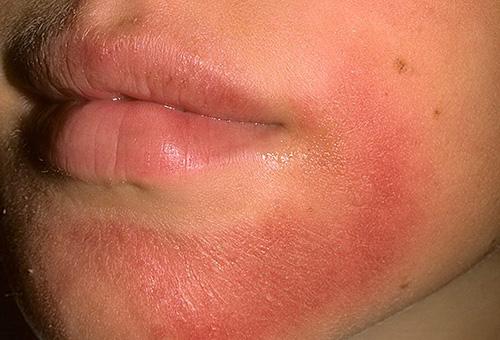 Симптомы аллергического дерматита на лице