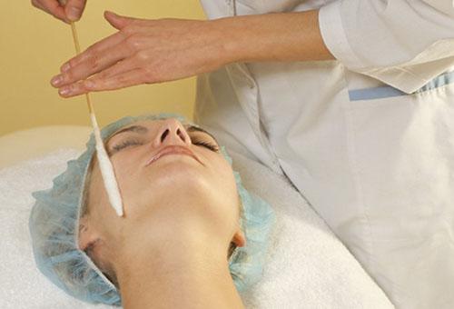 Чистка лица жидким азотом