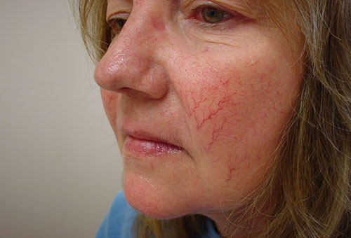 Проявления купероза на лице