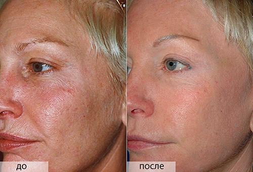 Результаты применения маски из солкосерила и димексида