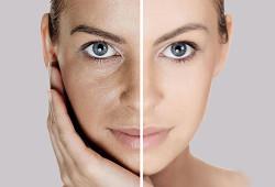 Улучшение кожи лица