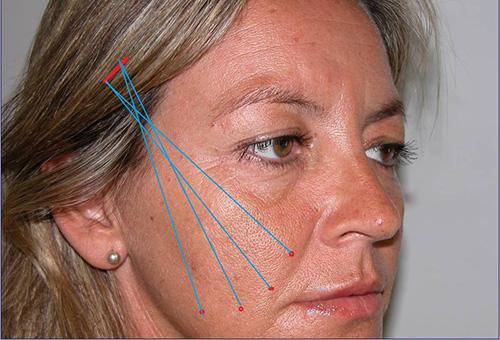 Перед процедурой армирования лица золотыми нитями