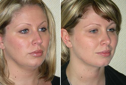 Фото до и после армирования лица золотыми нитями