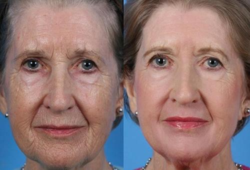 Эффективность глубокой очистки (пилинга) лица