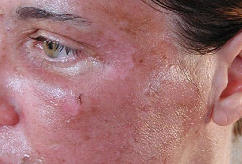 Глубокое очищение кожи лица в салоне