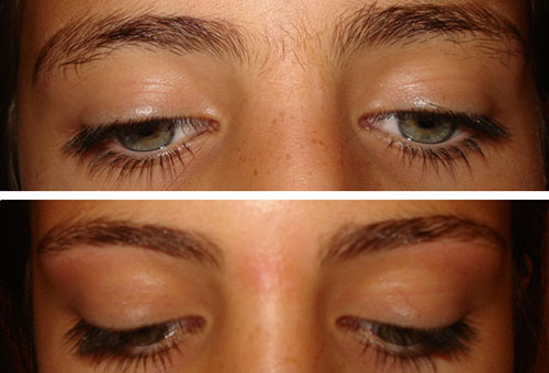 Лицо до и после депиляции с помощью крема