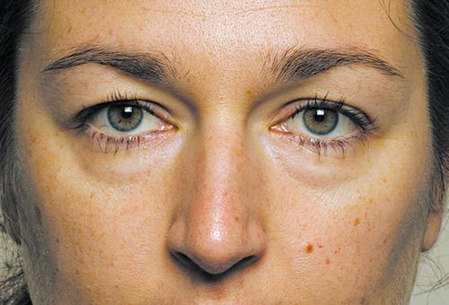 Хронические отеки под глазами