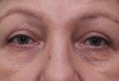 Хроническая отечность области вокруг глаз