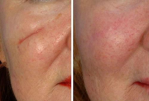 До и после шлифовки кожи с целью удаления шрама