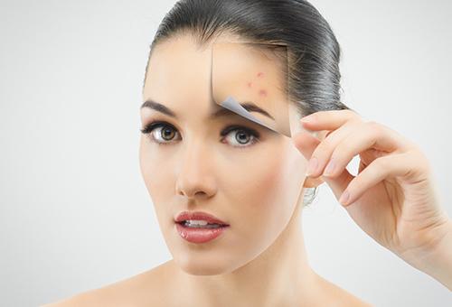 Профилактика угревой сыпи на лице