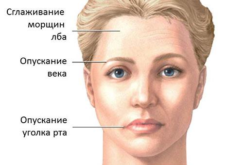 Симптомы поражения лицевого нерва