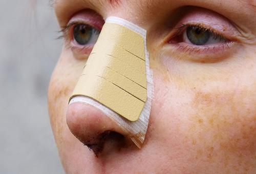 Пластическая операция для изменения формы носа
