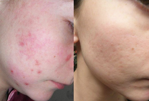 Лицо до и после курса масок из черной глины