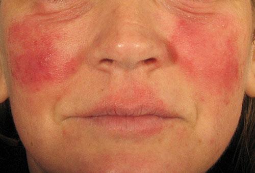 Химические ожоги от перекиси водорода на лице