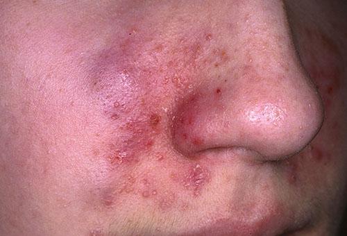 Себорейный дерматит: симптомы заболевания