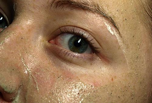 Маска из бодяги, нанесенная на лицо