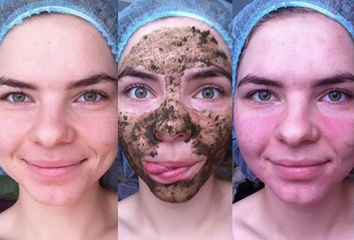 Этапы применения маски из бодяги