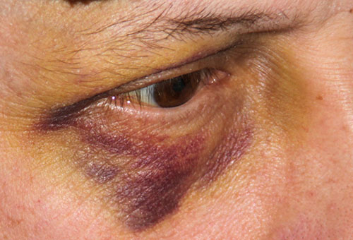 Заживающая гематома вокруг глаза