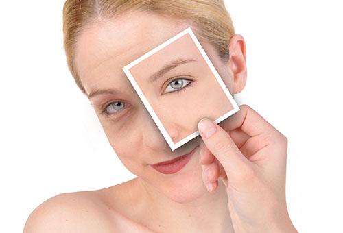 Лечение синяков на лице