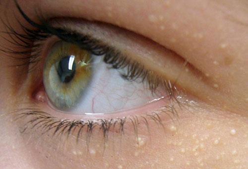 Просянка вокруг глаз