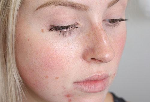 Воспаления и пигментные пятна на лице
