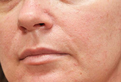 Расширенные поры на коже лица