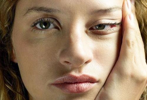 Синяки под глазами у девушки
