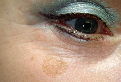 Возрастное пятно на лице