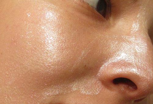 Маска с солкосерилом на лице
