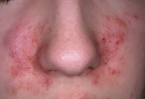 Прыщи и воспаление на лице