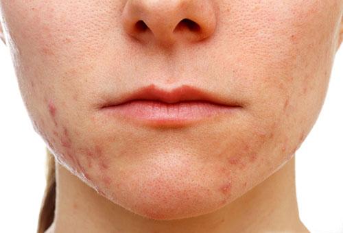 Прыщи и воспаления на лице