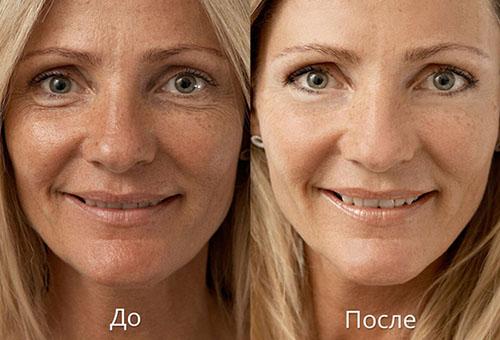 Лицо до и после подтягивающей сыворотки