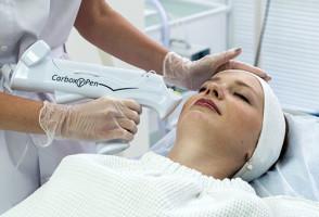 Сеанс карбокситерапии