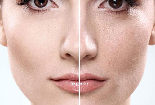 Кожа до и после использования омолаживающей маски
