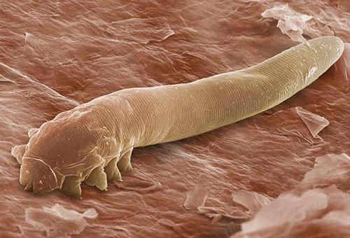 Клещ демодекс под микроскопом