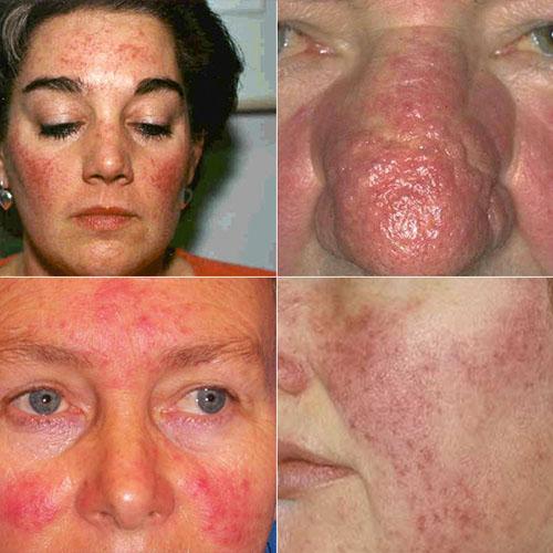 Проявления демодекоза на лице