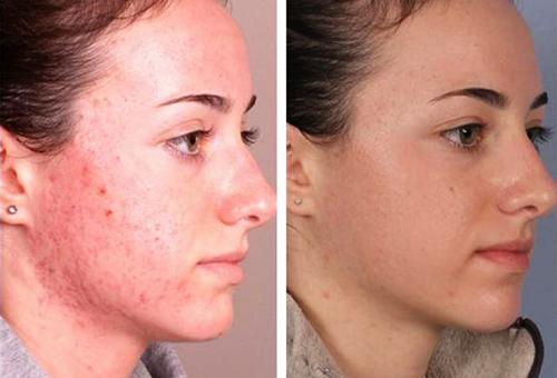 Лицо до и после лечения демодекоза