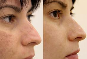 Лицо до и после применения бодяги