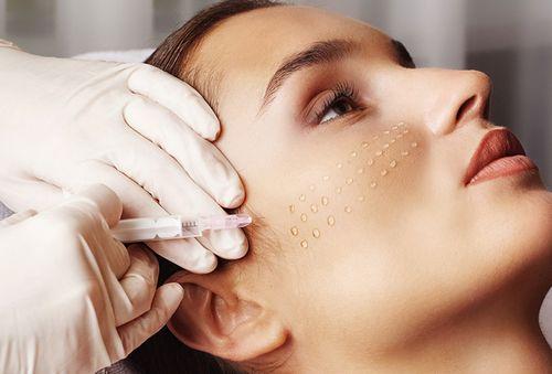 введение гиалурона в кожу
