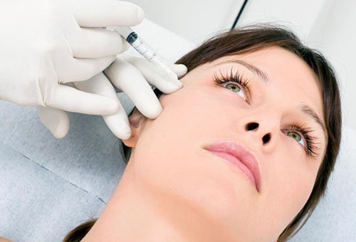 Инъекция ботулотоксина