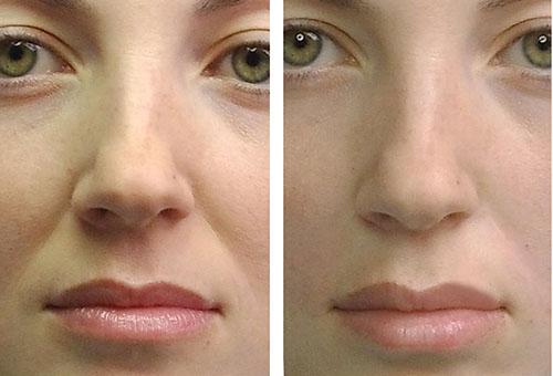 До и после липофилинга носогубных складок