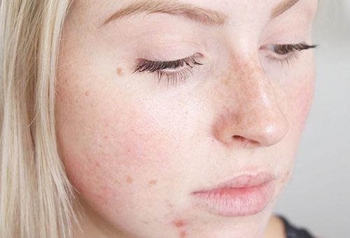 Воспаления на коже лица